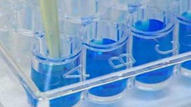 DNA-Test entlastet unschuldig Verurteilten