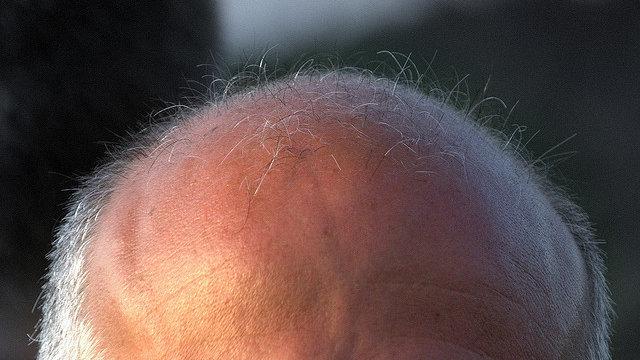 Nie wieder eine Glatze